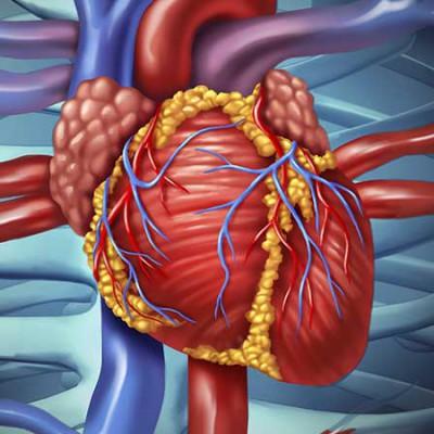 heart-disease-400x400