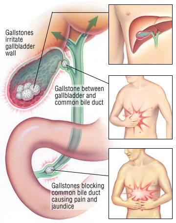 Gallstones Guide Causes, Symptoms and Treatment Options