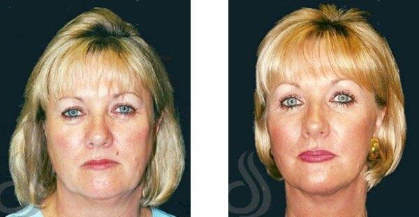 S-Lift Face Lift Sydney Dr Zurek Cosmetic Surgery