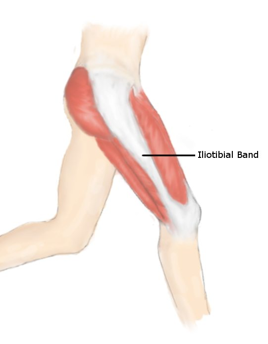 It band syndrome lori duncan pt for Exterior knee pain