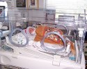 NICU (Neonatal Intensive Care Unit)