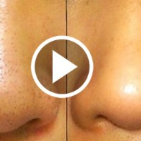 Best Solution of Blackheads Removal Permanently, Immediately