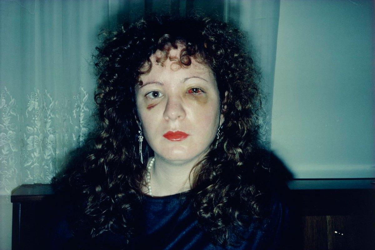 Nan One Month After Being Battered, 1984 © Nan Goldin