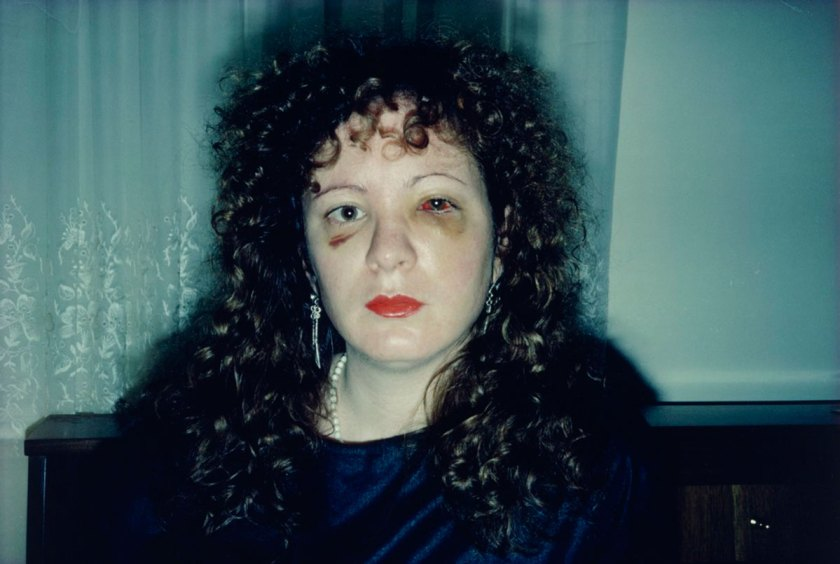 Nan One Month After Being Battered, 1984 © Nan Goldin