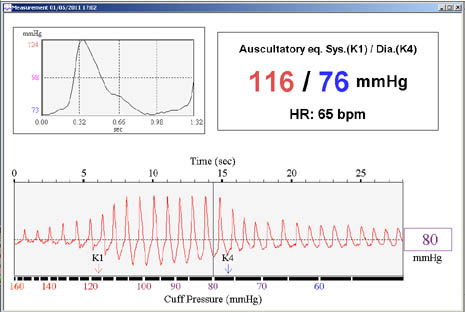 DynaPulse - DynaPulse 200M Monitoring System and Services for - how to graph blood pressure over time