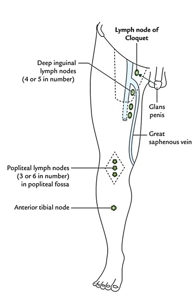 female groin lymph node diagram