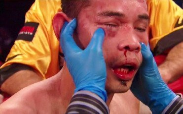 Donaire likely to fight Darchinyan in rematch in November