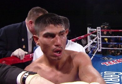 garcia324 Mikey Garcias broken schnoz   Critics honking about stoppage!