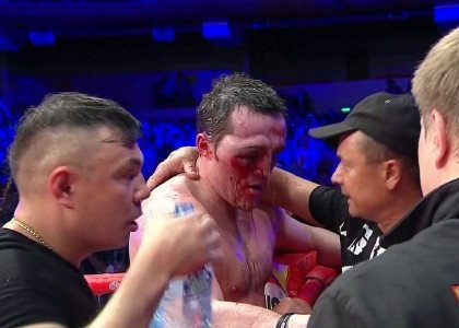 The Guillermo Jones Denis Lebedev War: The Good And The Bad Side Of Boxing