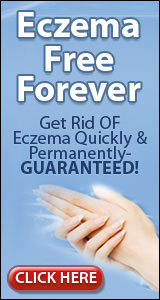Eczema Free Forever™