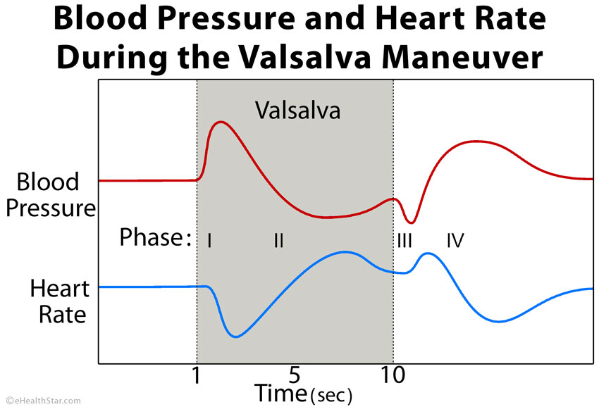 Valsalva Maneuver Definition, Purpose, Uses, Effects, Dangers - how to graph blood pressure over time