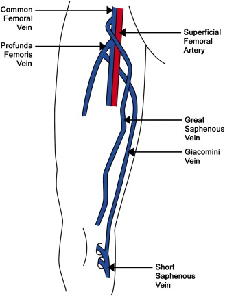 Case Report A Rare Orientation of Femoral Artery and Vein - EJVES