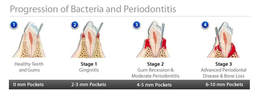 Gingivitis (Gum Disease) Symptoms, Causes, Treatments  FAQ