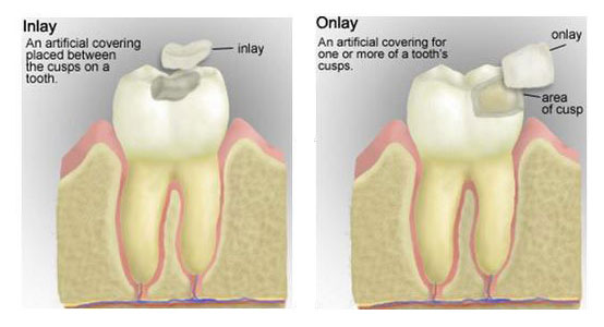 INLAYS AND ONLAYS Eley Family Dentistry