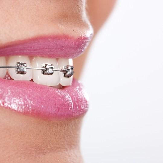 http://i0.wp.com/www.elitedental.cl/home/wp-content/uploads/2016/05/ortodoncia02.jpg?resize=540%2C540
