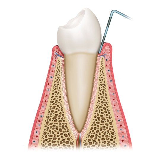 http://i0.wp.com/www.elitedental.cl/home/wp-content/uploads/2016/05/periodoncia01.jpg?resize=540%2C540