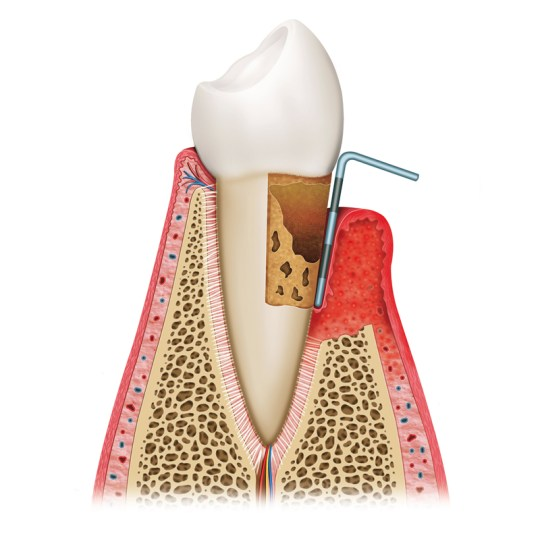 http://i0.wp.com/www.elitedental.cl/home/wp-content/uploads/2016/05/periodoncia03.jpg?resize=540%2C540