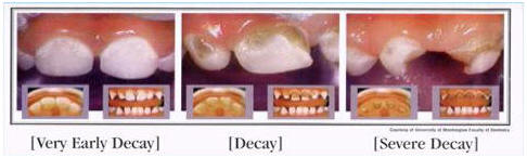 Prevent tooth decay naturally with healthy diet and lifestyle.