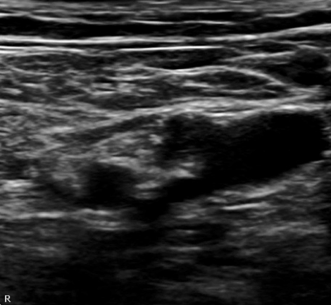 us-guided femoral nerve block for hip fracture | sinaiem, Muscles