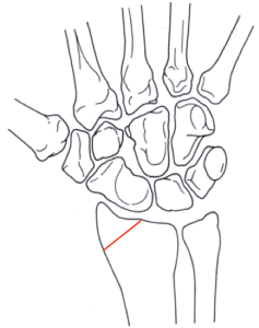 Hutchinson's fracture