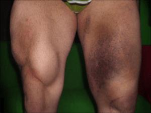 thigh ecchymosis