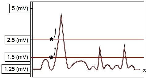 Identifying Complete Heart Block and the use of Temporary Cardiac Pacing in the Emergency Department