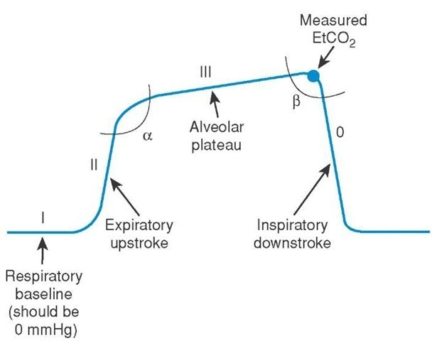 emDOCsnet \u2013 Emergency Medicine EducationInterpreting Waveform