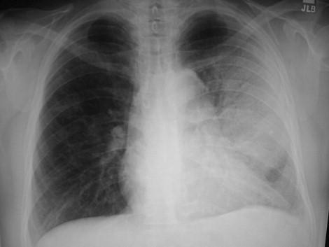 Pneumonia Mimics: Pearls and Pitfalls