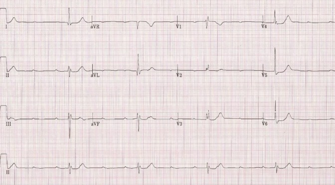 An Approach to Bradycardia in the Emergency Department