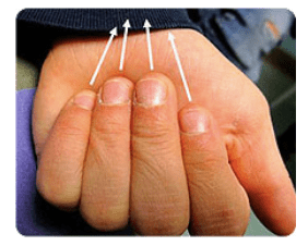 Figure 2. Assessment of Malrotation Steinman S. Seattle Children's Hospital Finger Fractures: Don't Forget the Malrotation. 2017. Available from: http://www.seattlechildrens.org/healthcare-professionals/resources/case-studies/finger-fractures-dont-forget-rotation/
