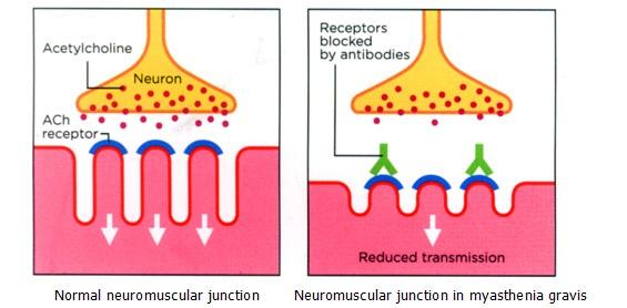 emDOCsnet \u2013 Emergency Medicine EducationNeuromuscular Junction - neuromuscular junction