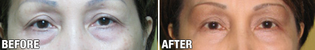 Before-After-Blepharoplasty-3