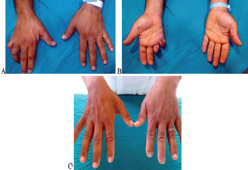 Reconstruction of high ulnar nerve lesions by distal double
