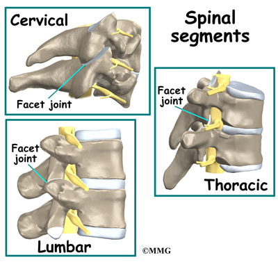 Facet Joint Injections - Midwest Bone and Joint Institute - Illinois