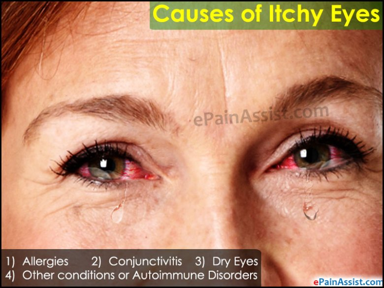 What Can Cause Your Eye To Itch Or Causes Of Itchy Eyes