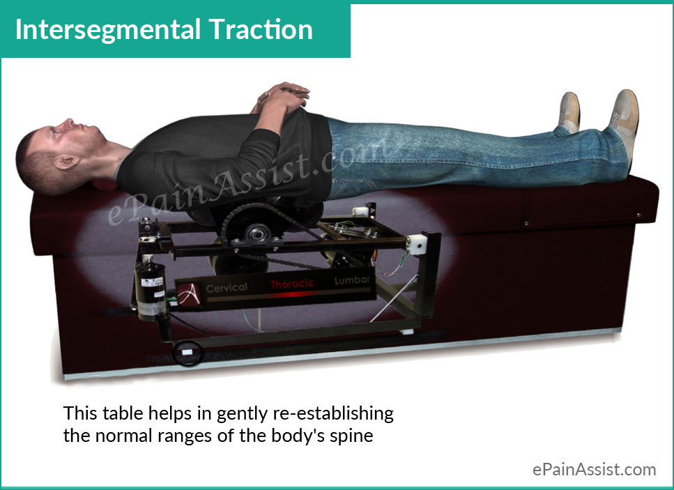 Intersegmental Traction or Roller Table