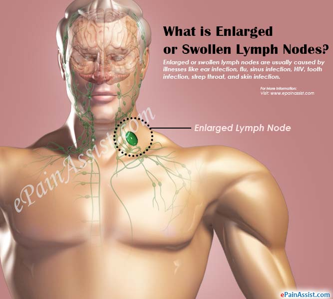 Enlarged or Swollen Lymph NodeSymptomsCausesTreatmentDiagnosis