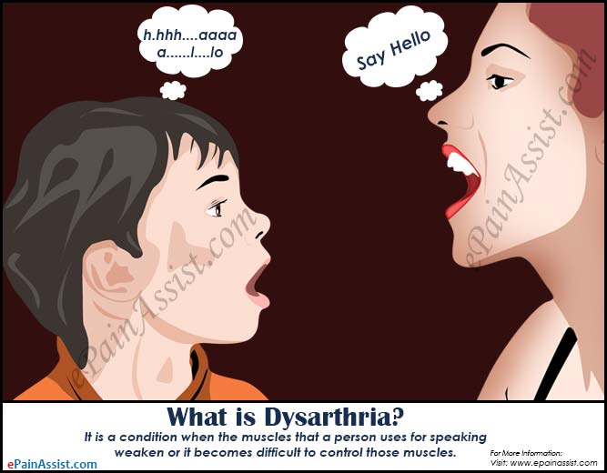 What is Dysarthria, Know its Types, Causes, Treatment, Symptoms