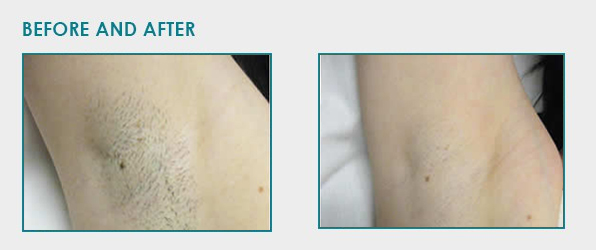 laser hair removal cape town