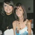 Lizzie Velasquez (right), 21, suffers from Neonatal Progeroid