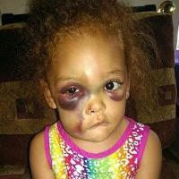 Severely Bruised Little Girl Says She was 'Kicked' on Playground, School Says 'No She Wasn't'