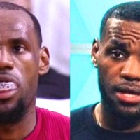 Why is LeBron James' Hairline Suddenly Closer to his Face?