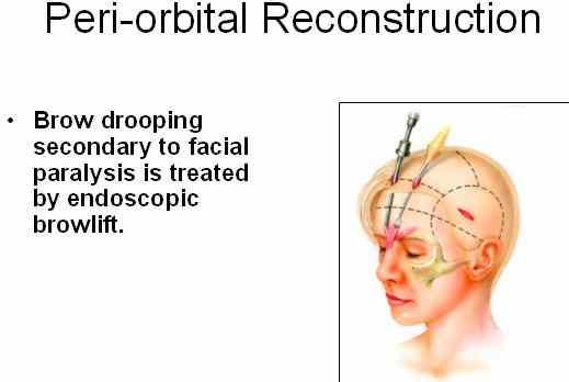 Endoscopic Brow Lift Facial Paralysis Institute