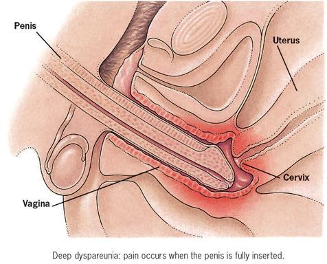 vagina g spot illustration
