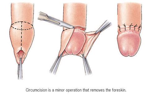 Can genital herpes break the hymen? 1