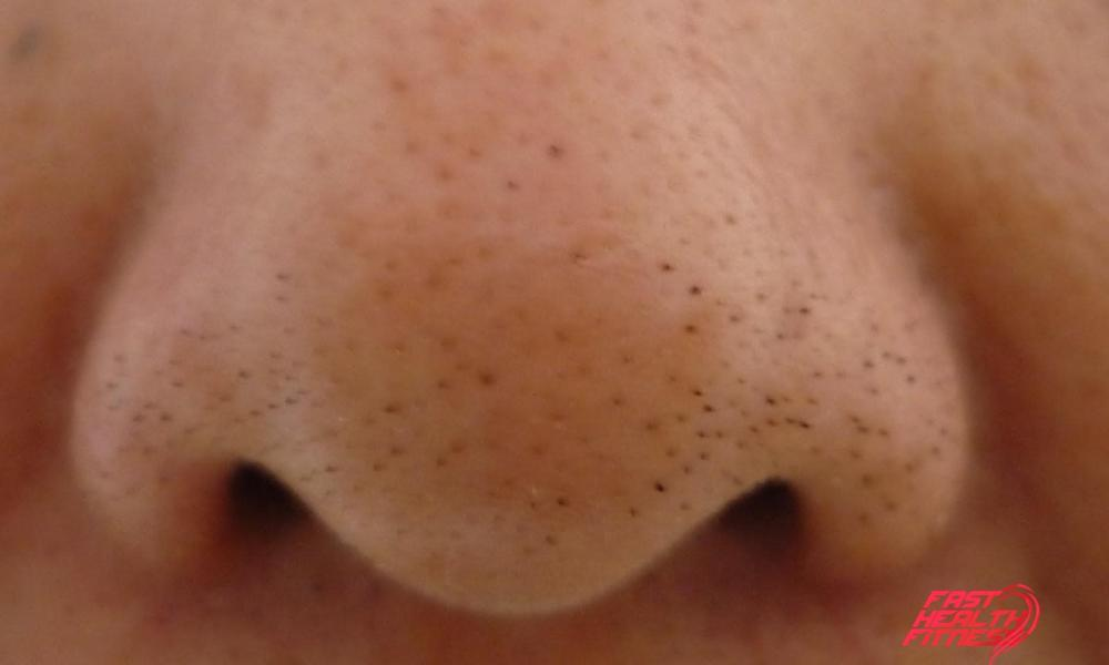 how-to-get-rid-of-blackheads1