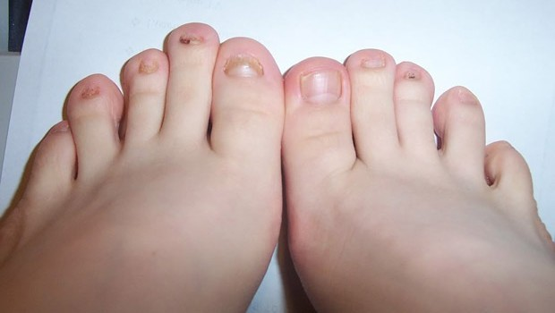 How To Get Rid Of Toenail Fungus -Home Remedies -Fast Home Remedies