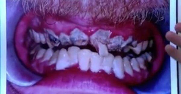 Isso é o que acontece quando uma pessoa fica 20 anos sem escovar os dentes Isso é o que acontece quando uma pessoa fica 20 anos sem escovar os dentes 2 91