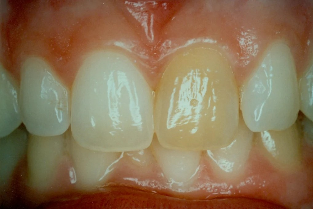 Internal Bleaching Before  After Pictures Concord NH Smile Gallery