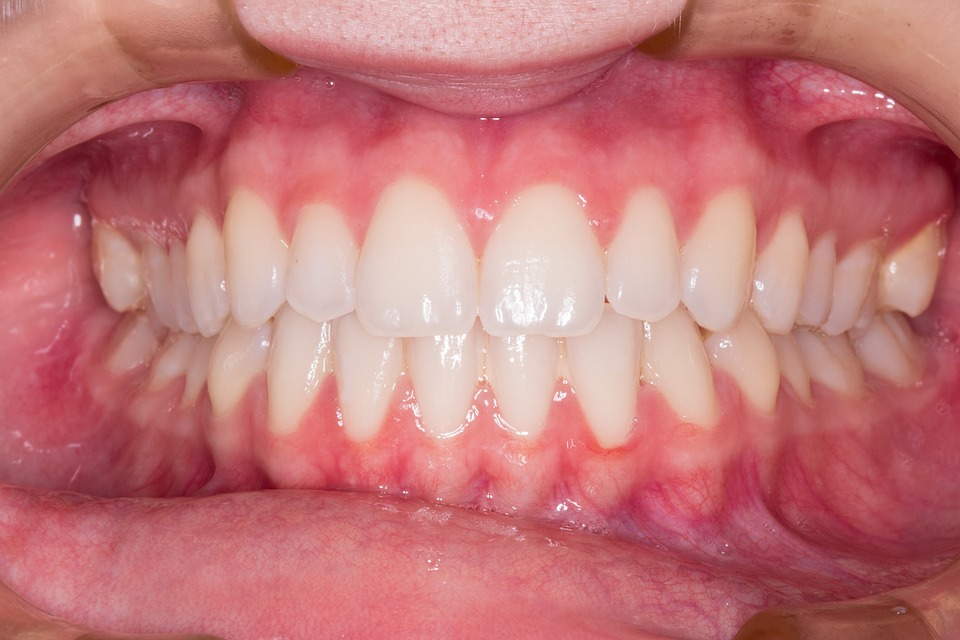 Gingivitis vs Periodontitis